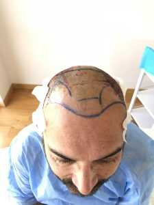 hair transplant surgery before photo turkey medaway clinic.