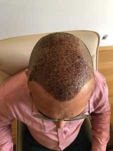 Turkey Hair Transplant Maximum Grafts After photo