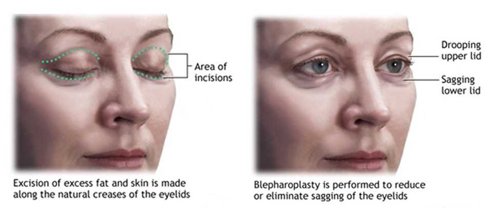 eyelid surgery explained. What is eyelid surgery. Remove excess skin around eyes.