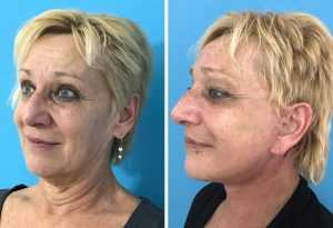 facelift surgery turkey tighten skin and look younger with cosmetic surgery.