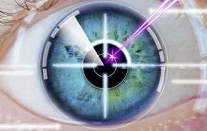 laser eye surgery explained. what is laser eye surgery? vision correction.