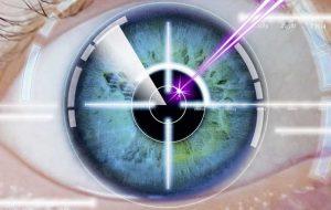 laser eye surgery turkey explained.