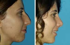 nose job explained. What is a nose job? What is nose correction?