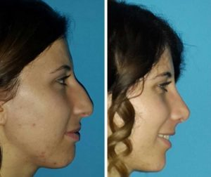 Nose Job Turkey - All-in Nose Reshaping Package Only £1999 | MedAway