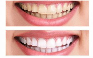 teeth whitening explained. How do i get white teeth?