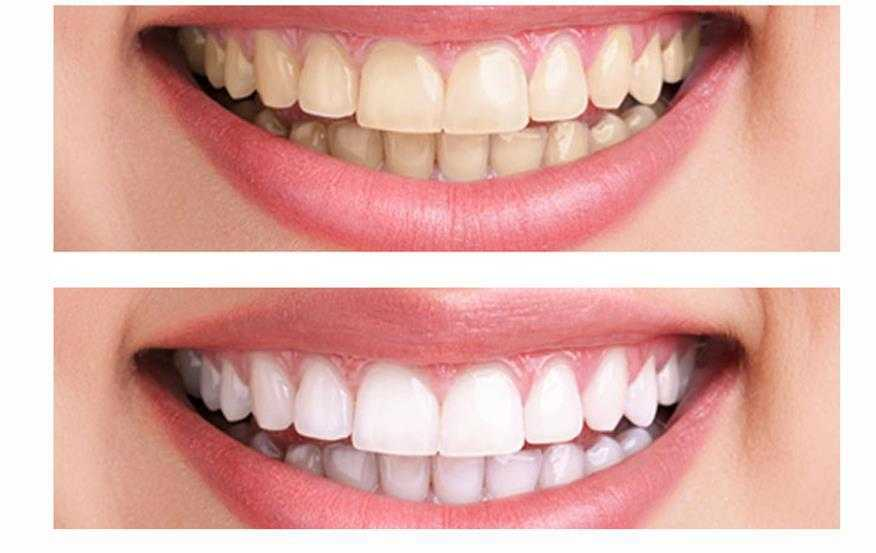 Teeth Whitening Cost Compare Cosmetic Dentistry Prices Medaway