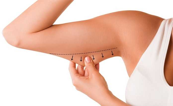 arm lift surgery remove excess skin and bingo wings