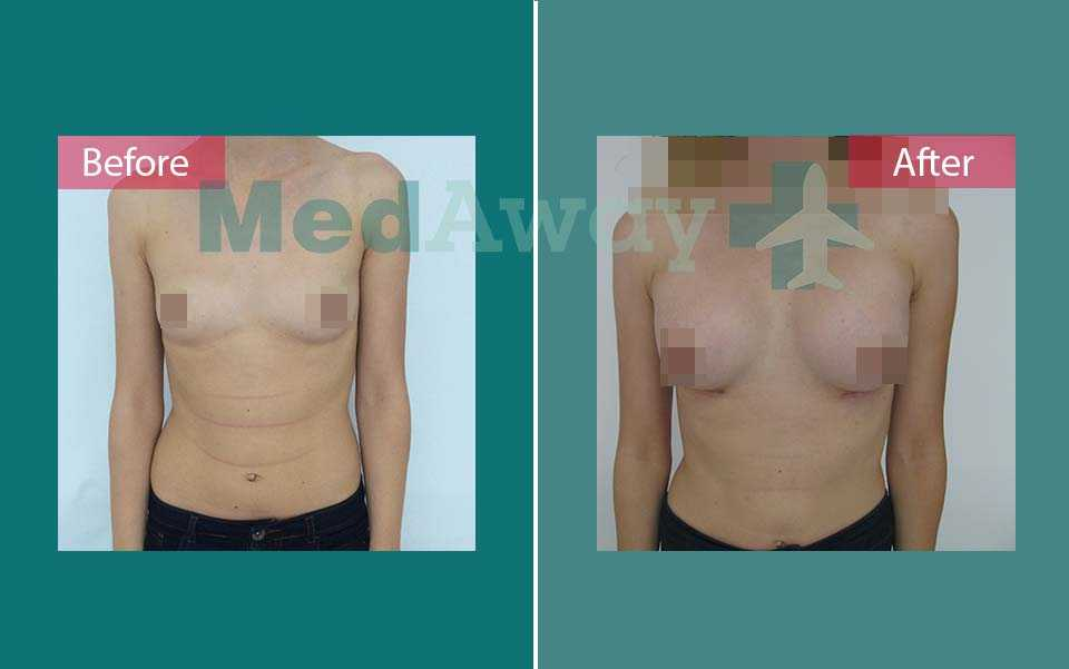 Breast Augmentation Before and After Turkey