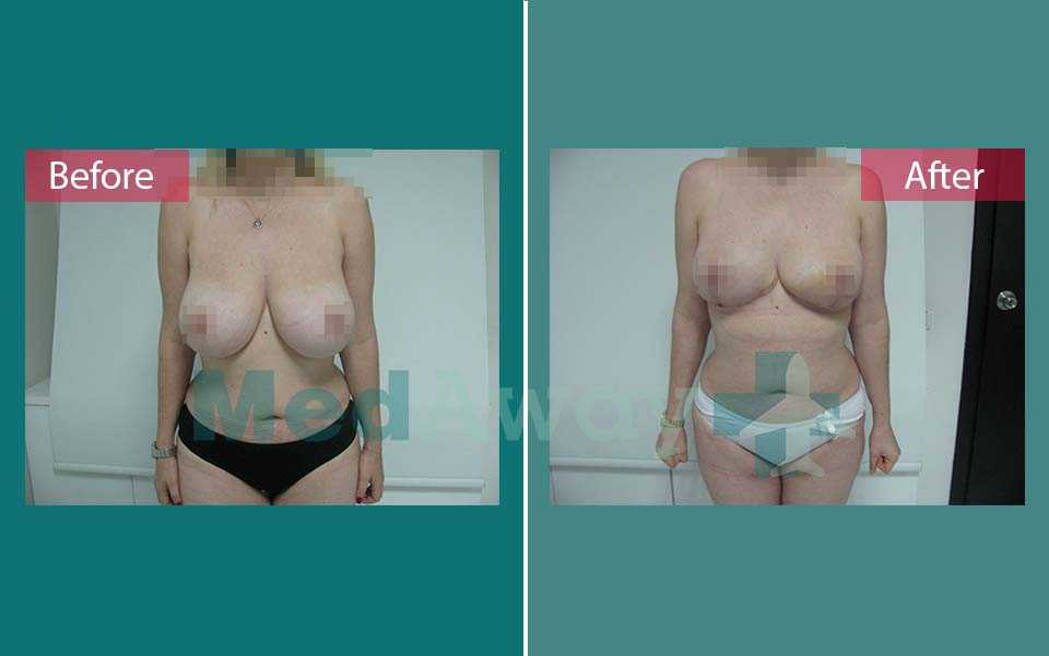 Breast Reduction Before and After Turkey