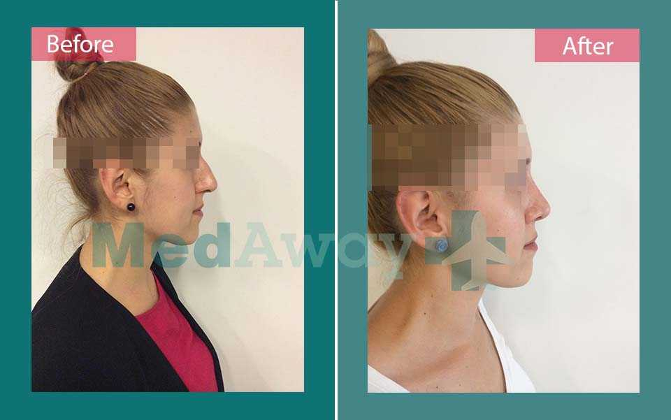 Nose Job Before and After Turkey