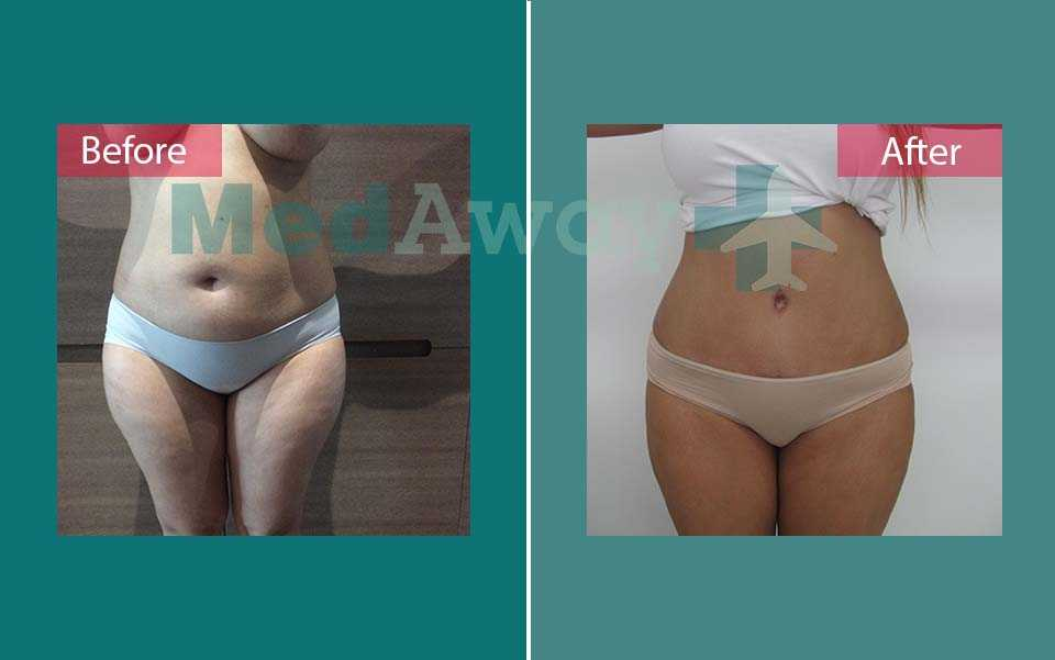 Tummy Tuck Before and After Turkey