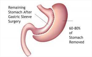 gastric sleeve surgery weight loss surgery bariatric surgery