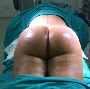 brazilian butt lift surgery turkey bbl before and after
