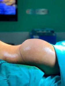 brazilian butt lift surgery turkey bbl before and after