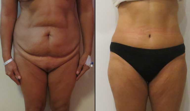 tummy tuck abdominoplasty before and after