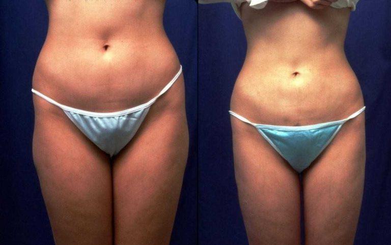 Vaser liposuction Turkey Vaser lipo before and after
