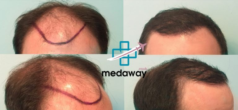 Hair Transplant in Turkey Before and After