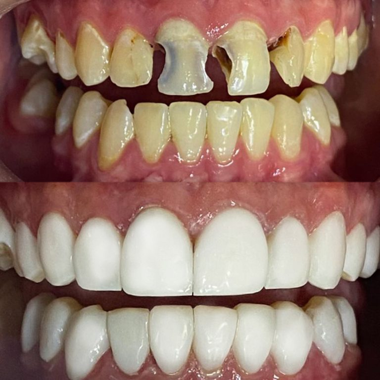Veneers Before After 3