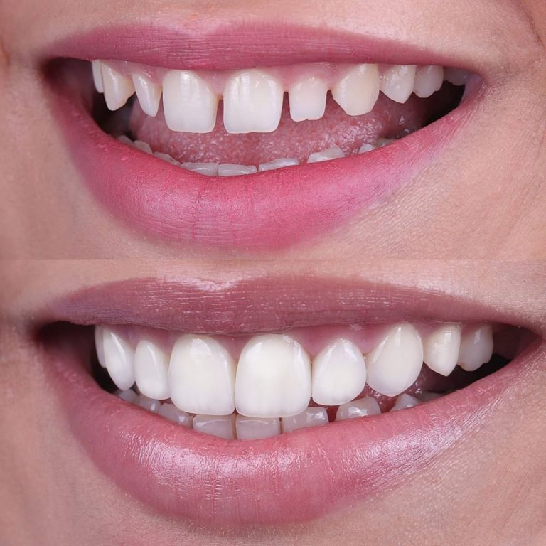 Veneers Before After 4