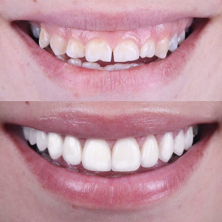 Veneers Before After 5