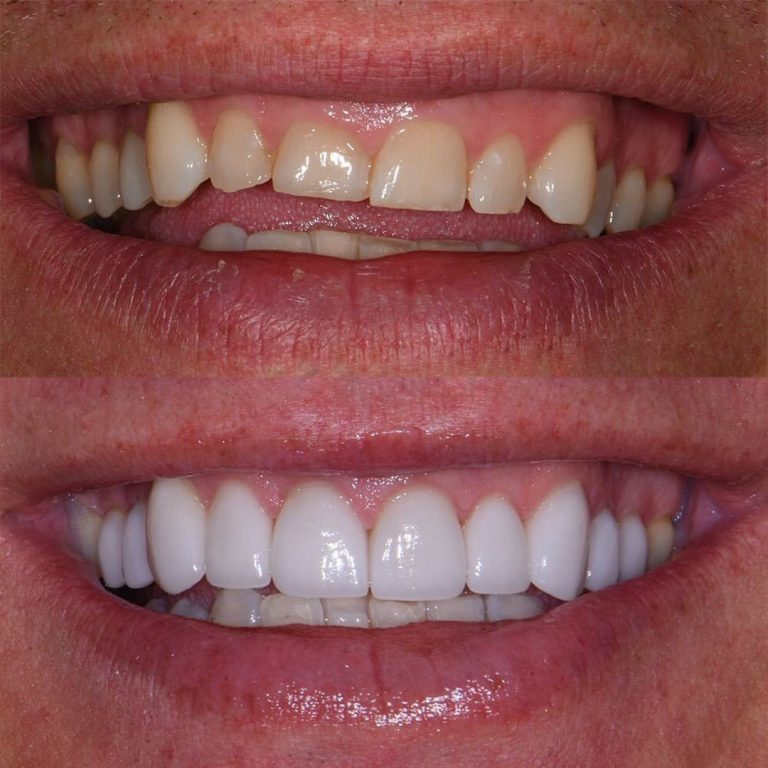 Veneers Before After 6
