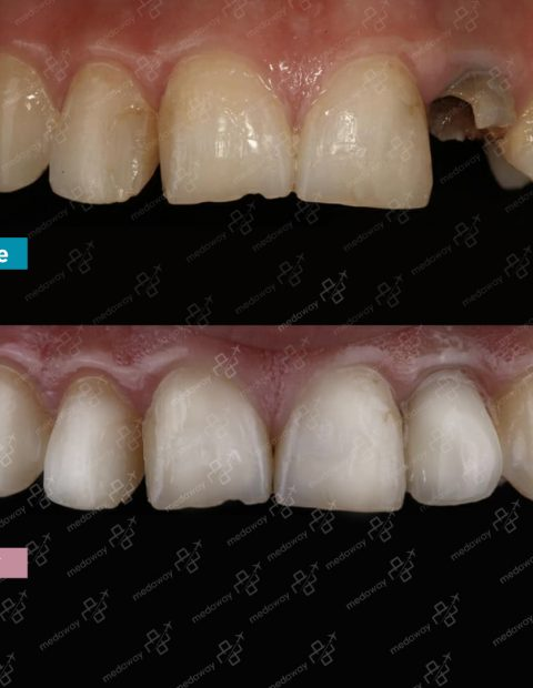 dental-implants -turkey-before-after